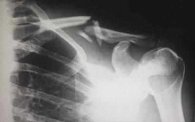 El método Global: Cómo recuperarse de una lesión